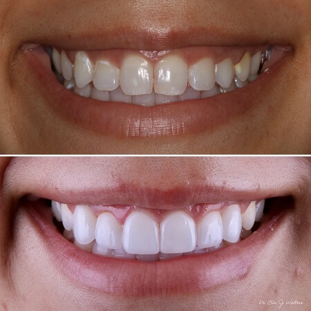 Before and after results from porcelain veneers